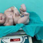 5 kg child