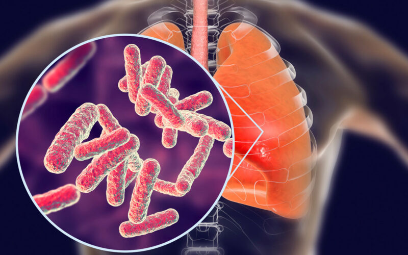 tuberclosis